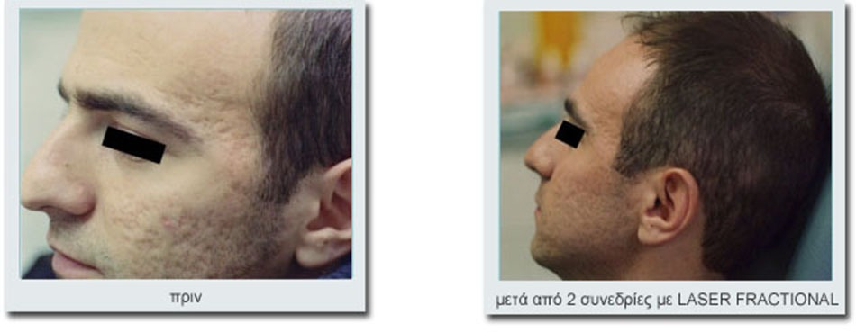 before_after_2